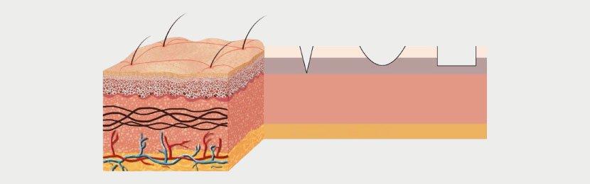 Dr. Bülent Bağcı Akne izi çeşitleri