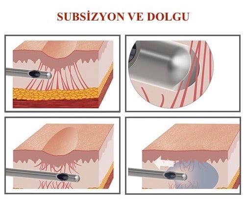 Dr. Bülent Bağcı Subsizyon ve Dolgu