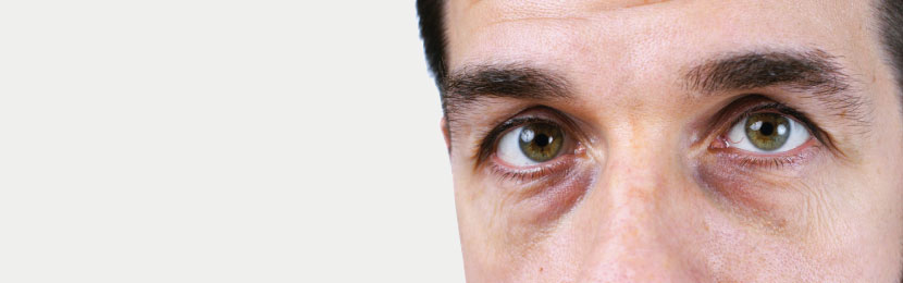 Dr. Bülent Bağcı Göz altı ışık dolgusu çeşitleri